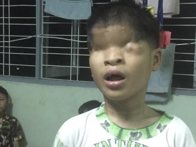 băiețel din Myanmar fără ochi